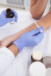 Allergy testing prick and intradermal skin testing gainesville fl